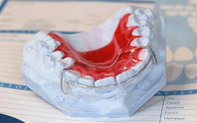 Oikomis- ja purentahoidollisten laitteiden, kirurgisten ohjaimien ja hammassuojien hintaan lisätään arvonlisävero
